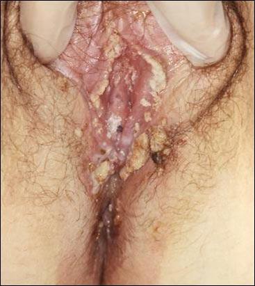 Can genital warts irritate whole vulva